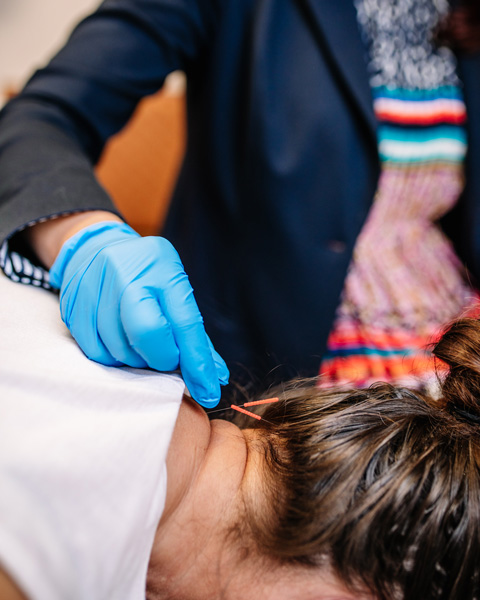 Female patient face down receiving acupuncture treatment in the back of her neck