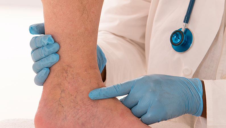 Medical professional with blue gloves pointing to veins on patient's foot